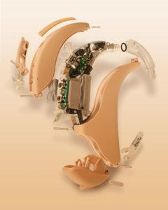 Composants d un appareil auditif