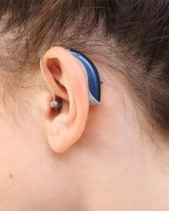 Exemple d appareil auditif contour d oreille